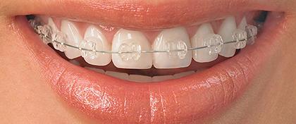 tratamientos_ortodoncia