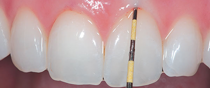 tratamientos_periodoncia