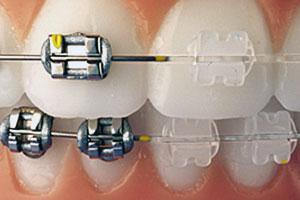 Ortodoncia y Odontopediatría - Brakets autoligados