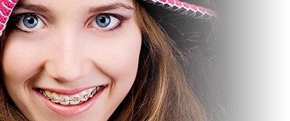 Ortodoncia - Brackets autoligables