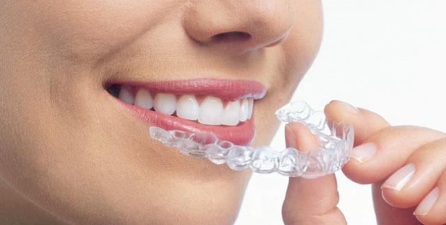 Ortodoncia con Invisaling