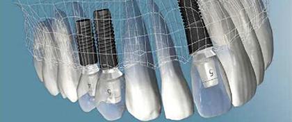tratamientos_implantes